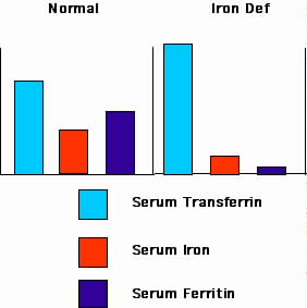 Changes in serum levels of transferrin, ironandferritin produced by iron deficiency